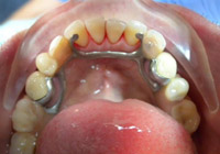 Ball Attachment Denture