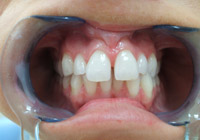 Four Teeth Lumineer Case